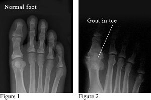 gouty arthritis erosions managing gout without medication swelling ankle after gout